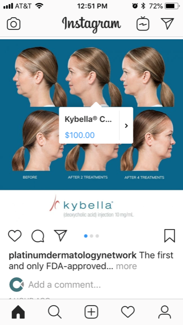 Instagram shop Kybella post